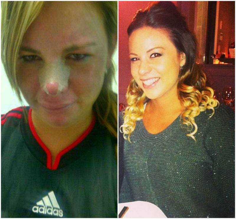 Another lovely before and after of me on the left is when i broke my